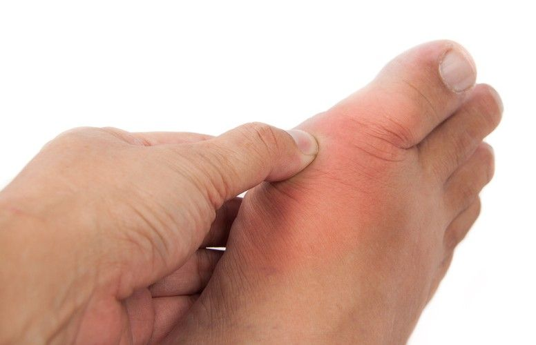 Arthritis Of The Big Toe Joint Often Develops In Those Between 30