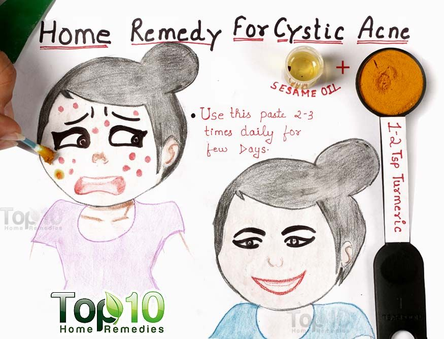 Home Remedies For Cystic Acne Top 10 Home Remedies Cystic Acne