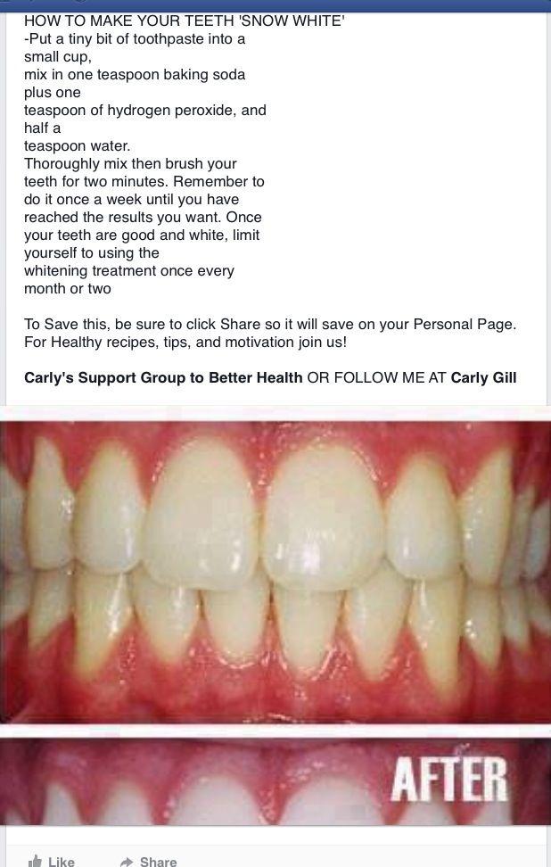 Pin By Kathy Emmons On Heigne Teeth Whitening Whitening Teeth