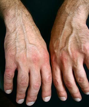 Foods That Help Reverse Rheumatoid Arthritis Livestrong Com Seronegative Arthritis Reactive Arthritis Arthritis Hands