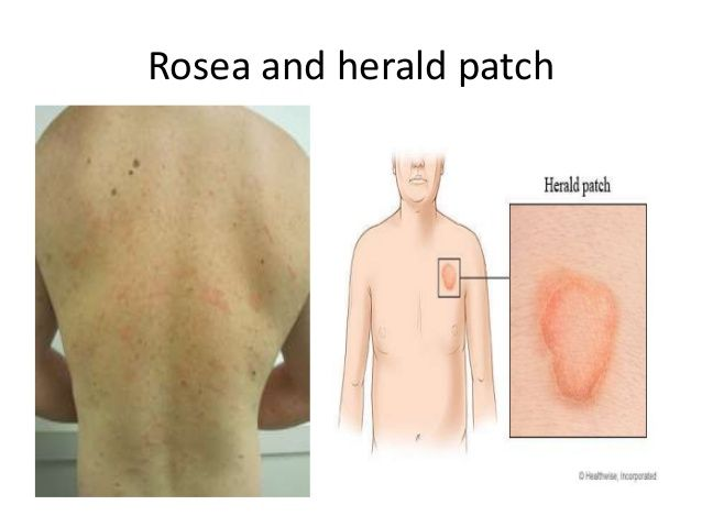 Image result for pityriasis rosea, christmas tree pattern, itchy ...
