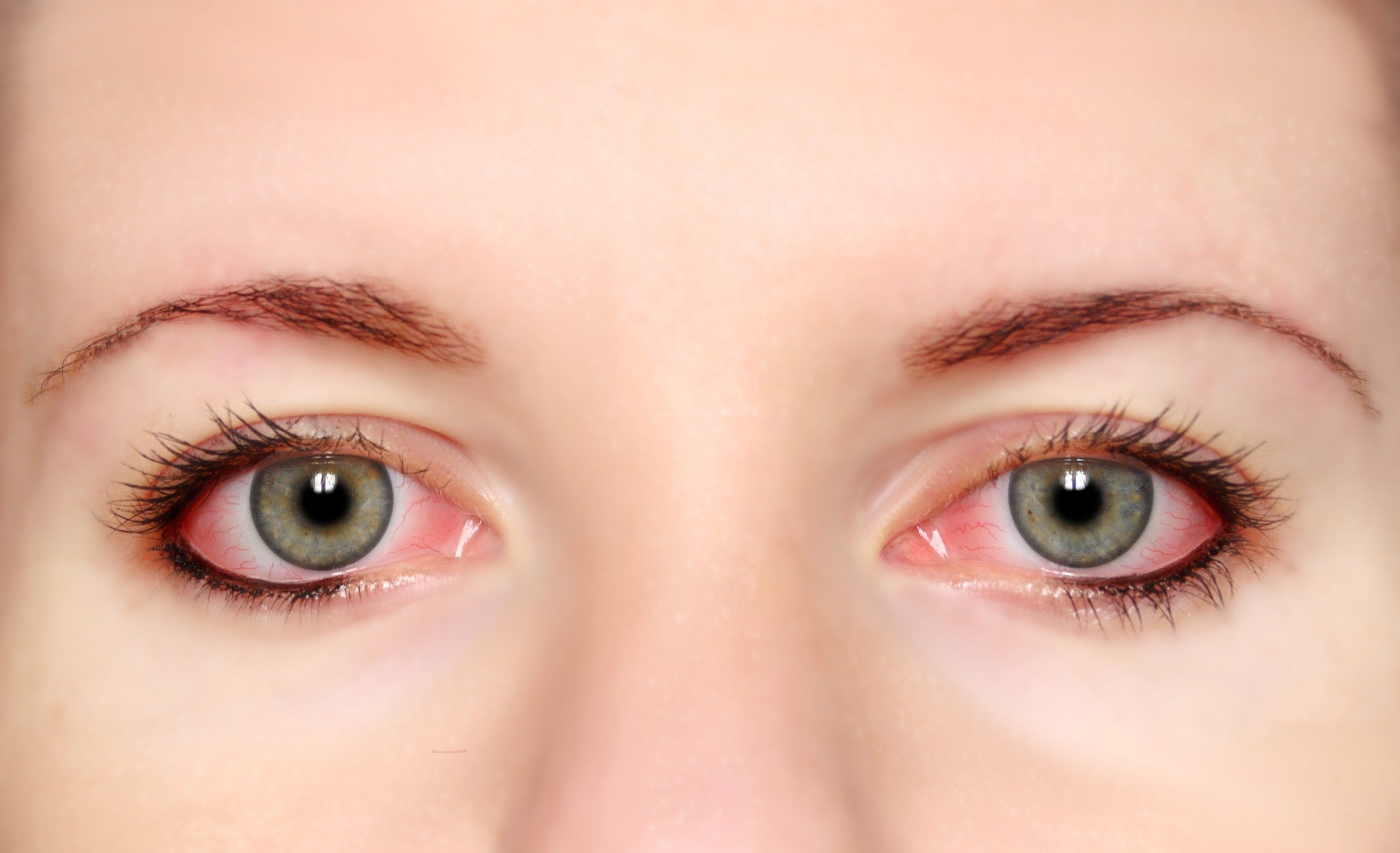 Best 5 natural ways to soothe tired eyes natural pink