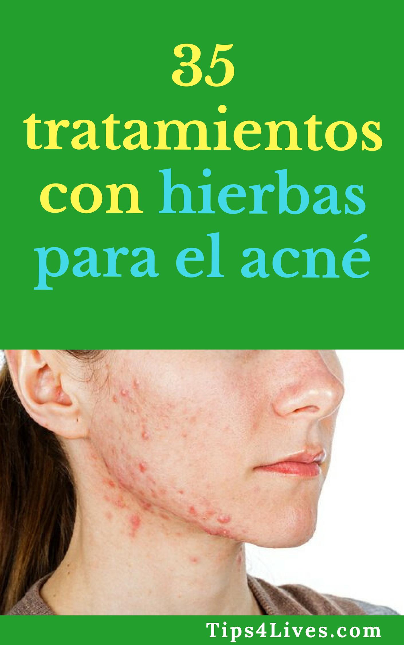35 Tratamientos Con Hierbas Para El Acné Tips Life Vida Salud Remedios Tips4lives Diy Bienestar Acne Espinillas Tratamientos