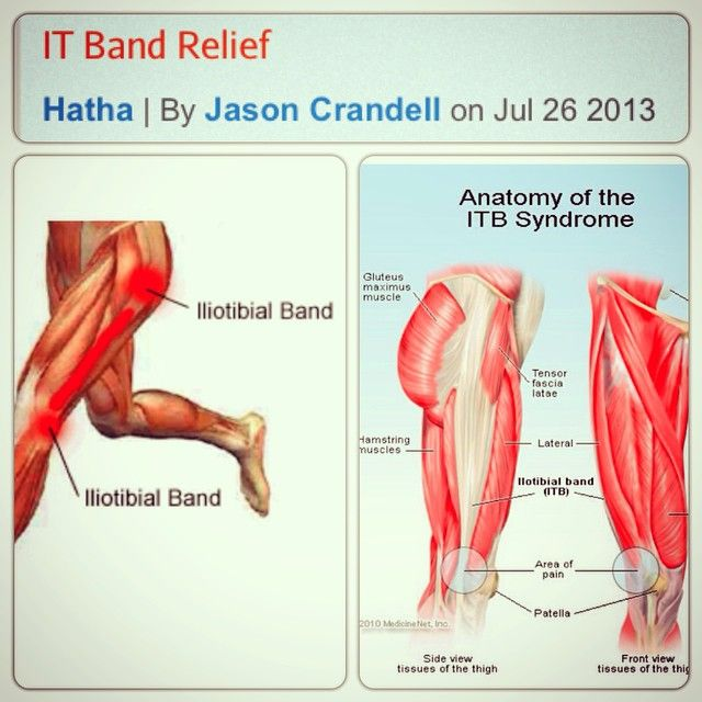 I've recently come down with #Iliotibial Band Syndrome #ITBS, one of the most common overuse #injuries among #runners. It occurs when the iliotibial band, the #ligament that runs down the outside of the #thigh from the #hip to the #shin, is tight or inflamed. The IT band attaches to the #knee and helps stabilize and move the #joint. When the IT band isn't working properly, movement of the knee (and, therefore, #running) becomes painful.