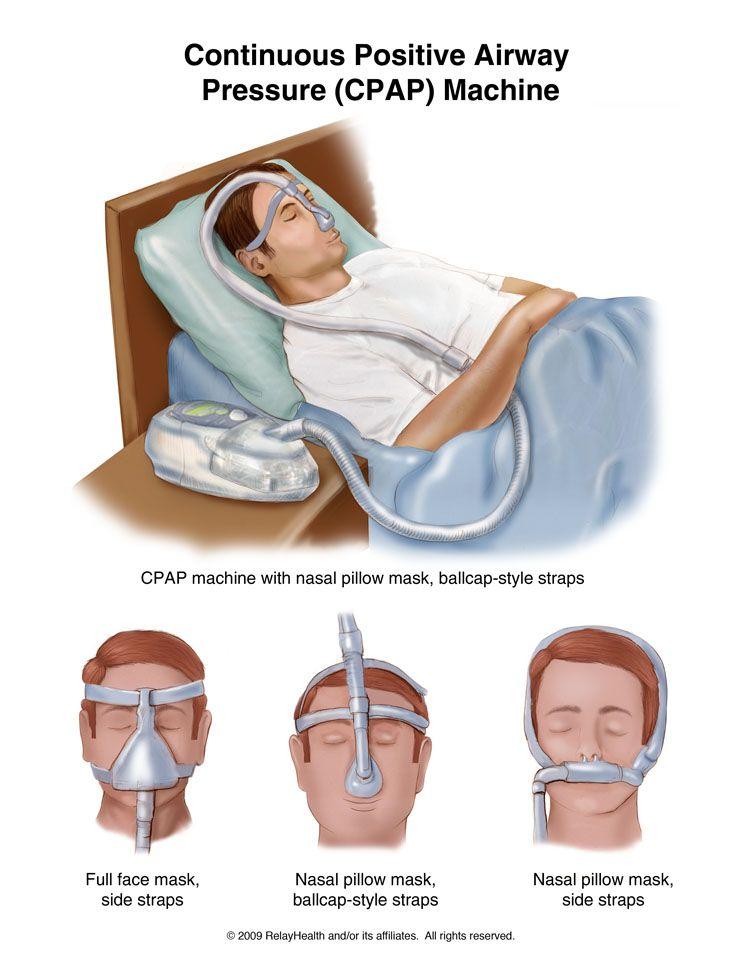 Sleep Apnea Machine To Buy