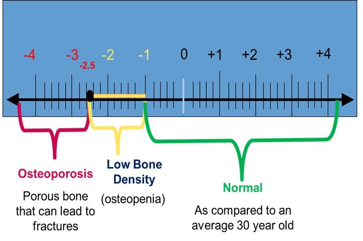 33+ What is a t score for osteoporosis ideas