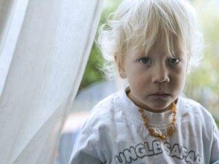 Erfahren Sie mehr über Autismus bei Kleinkindern. Autismus wird von der Weltgesundheitsorganisation zu den tiefgreifenden Entwicklungsstörungen gerechnet. Er wird von Ärzten, Forschern, Angehörigen und Autisten selbst als eine angeborene, unheilbare Wahrnehmungs- und Informationsverarbeitungsstörung des Gehirns beschrieben, die sich schon im frühen Kindesalter bemerkbar macht. Andere Forscher und Autisten beschreiben Autismus als angeborenen abweichenden #Gesundheit