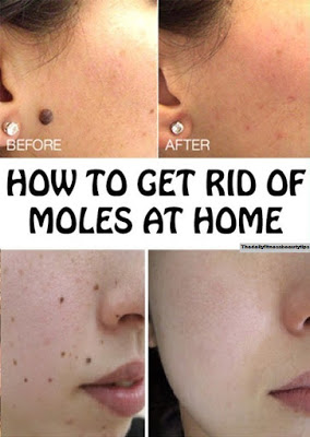 If You Have A Mole At One Of These 7 Places On Your Body This Is What It Means You Will Be Surprised Health Beauty How To Stay Healthy Good Interpersonal Skills