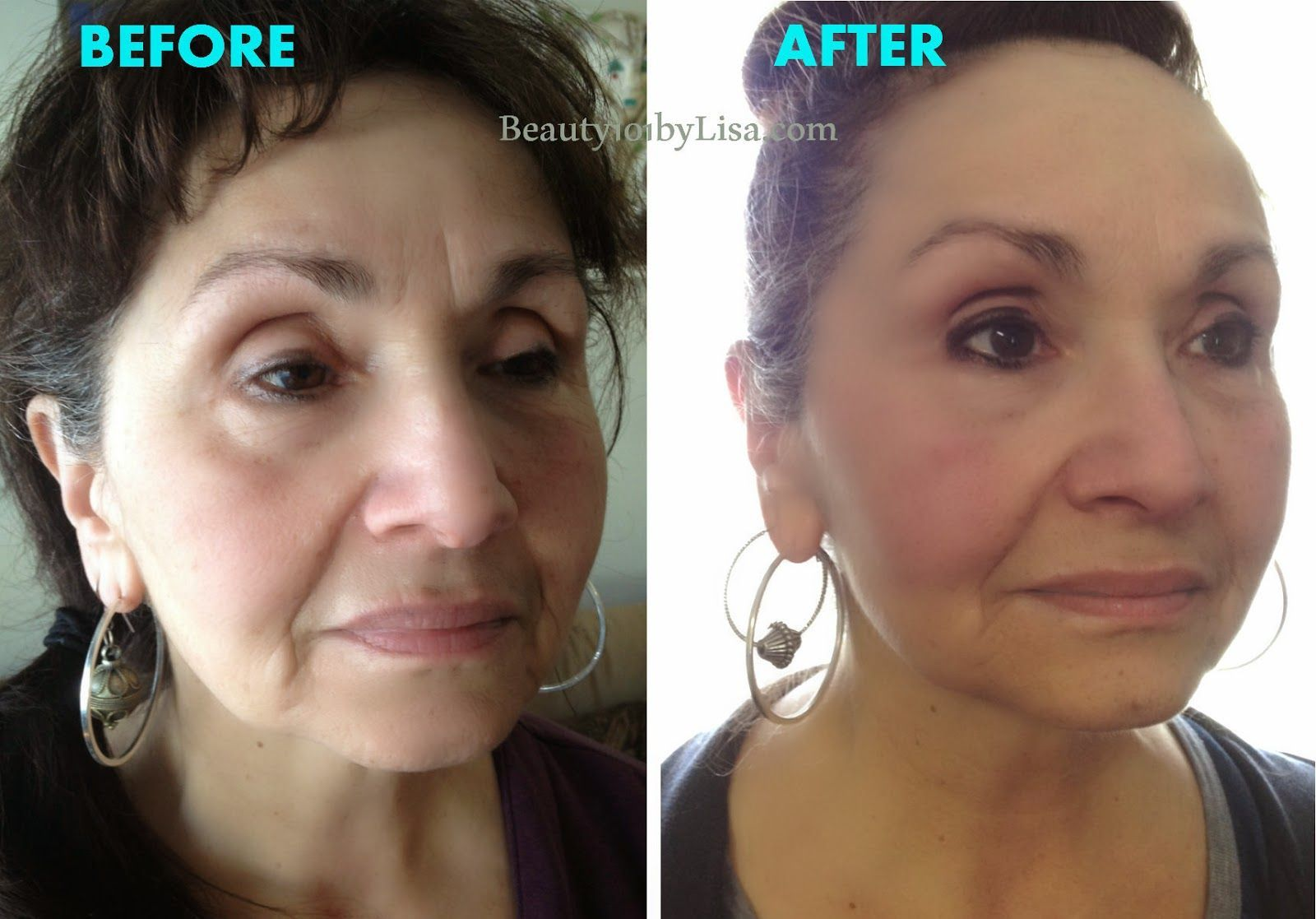 Vitamin B3 Cream Botox In A Bottle Before And After Results Anti Aging Reverse The Signs Anti Aging Beauty Secrets Skin Care Recommended Skin Care Products