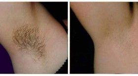 Underarms Laser Hair Removal In Delhi Underarm Hair Removal Cost
