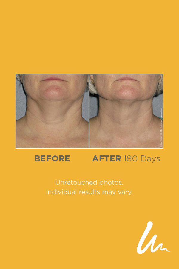 We Re Taking Some Time To Appreciate These Natural Looking Results From Ultherapy Which Occurred Gradually Ultherapy Anti Aging Therapy Ultrasound Technology