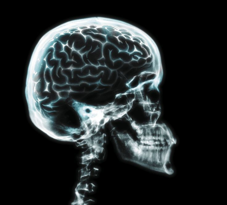 brain anatomy medical head skull digital 3-d x-ray xray psychedelic ...