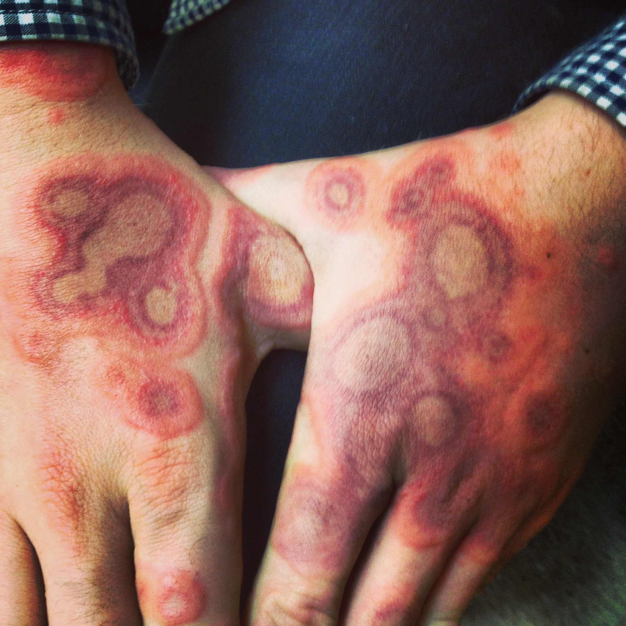 ringworm in humans pictures