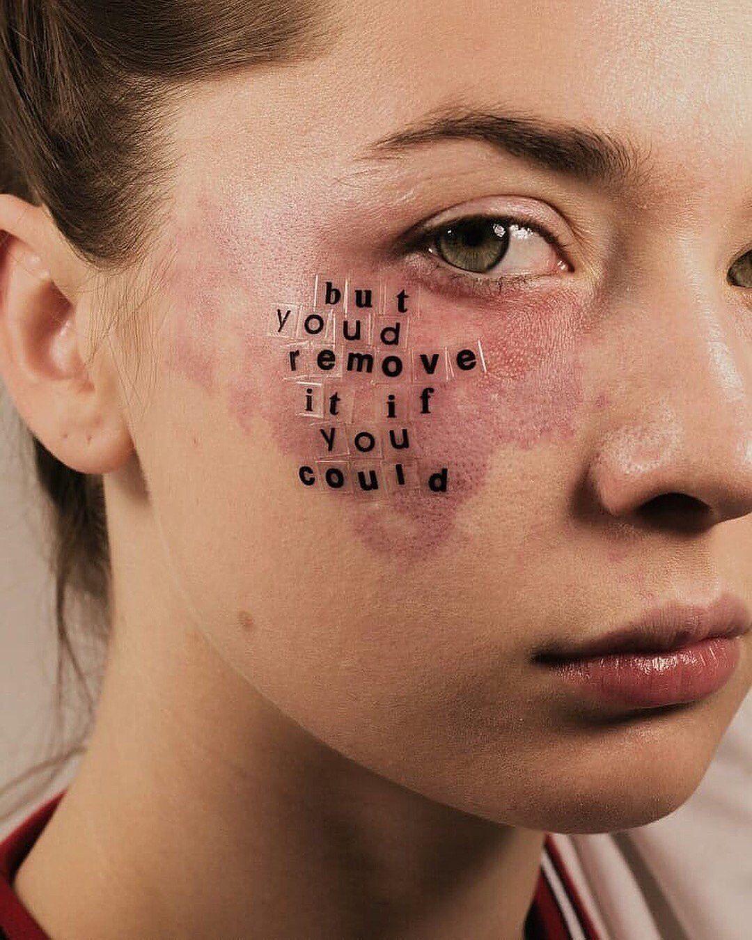My Birthmark Is Badass Follow Artsvisions By Peterdevito Mode She Is Honestly So Pretty Look At Her Eyes In 2020 Vitiligo Treatment Beauty Standards Vitiligo