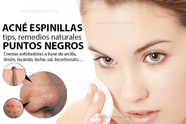 Elimina Puntos Negros Con Cremas Exfoliadoras Naturales Con
