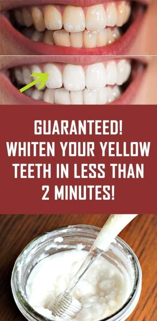 Photo of GUARANTEED TEETH WHITENING IN LESS THAN 2 MINUTES! – One pro Blogg