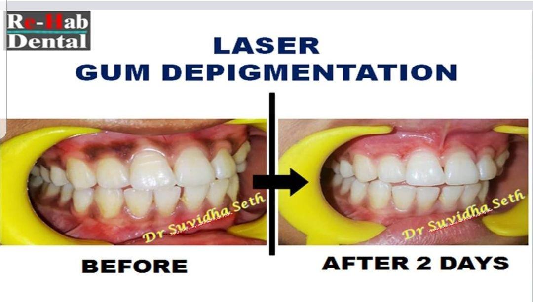 Laser Dentist in Noida laser dentistry in noida