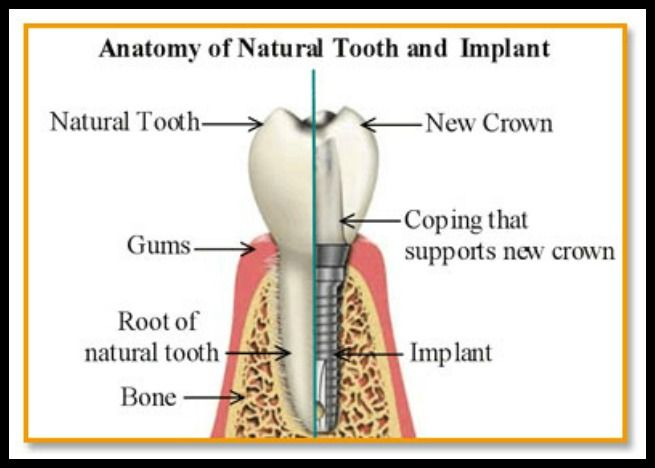 Diagram Showing Dental Implant All About Dentistry Pinterest