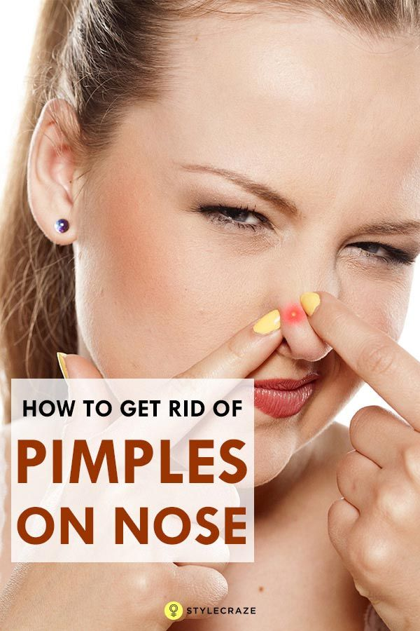 How To Get Rid Of Pimples Instantly How To Get Rid Of Pimples On Nose 6 Ways To Remove How To Get Rid Of Pimples Acne On Nose How To Remove Pimples