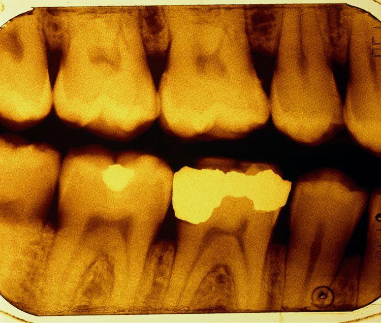 Disadvantages Of Dental Ceramics