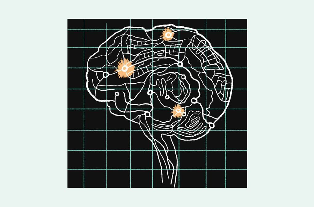 What really causes migraines is revealed - Wired.co.uk: Wired.co ...