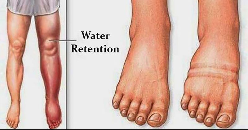 What Causes Water Retention, Bloating And How to Avoid It | Foot ...