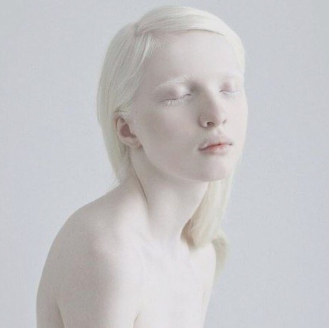 Albino nude people, tori stonetures