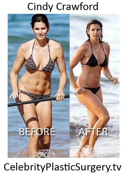 Dr. Fleming, Kadlec Clinic Plastic Surgery. Cindy - Mommie makeover , - - Dr. Fleming, Kadlec Clinic Plastic Surgery. Cindy – Mommie makeover , <!--more-->