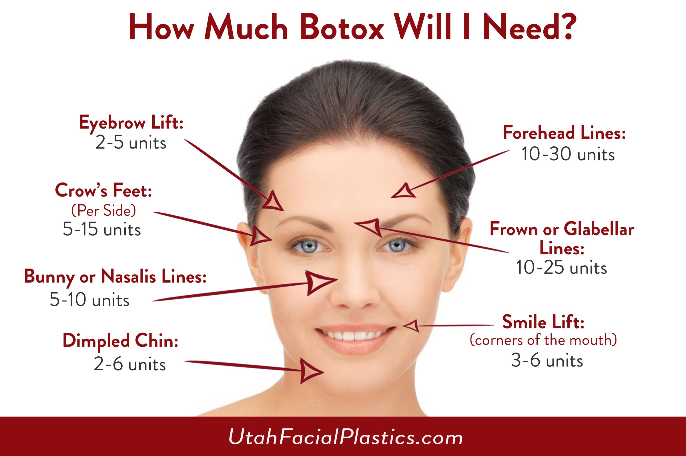 Image Result For Before And After Pictures For Botox For