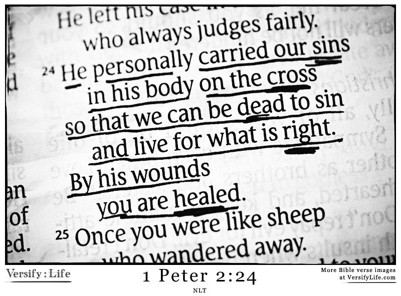 By His Wounds We Are Healed God Iswasand Will Always Be