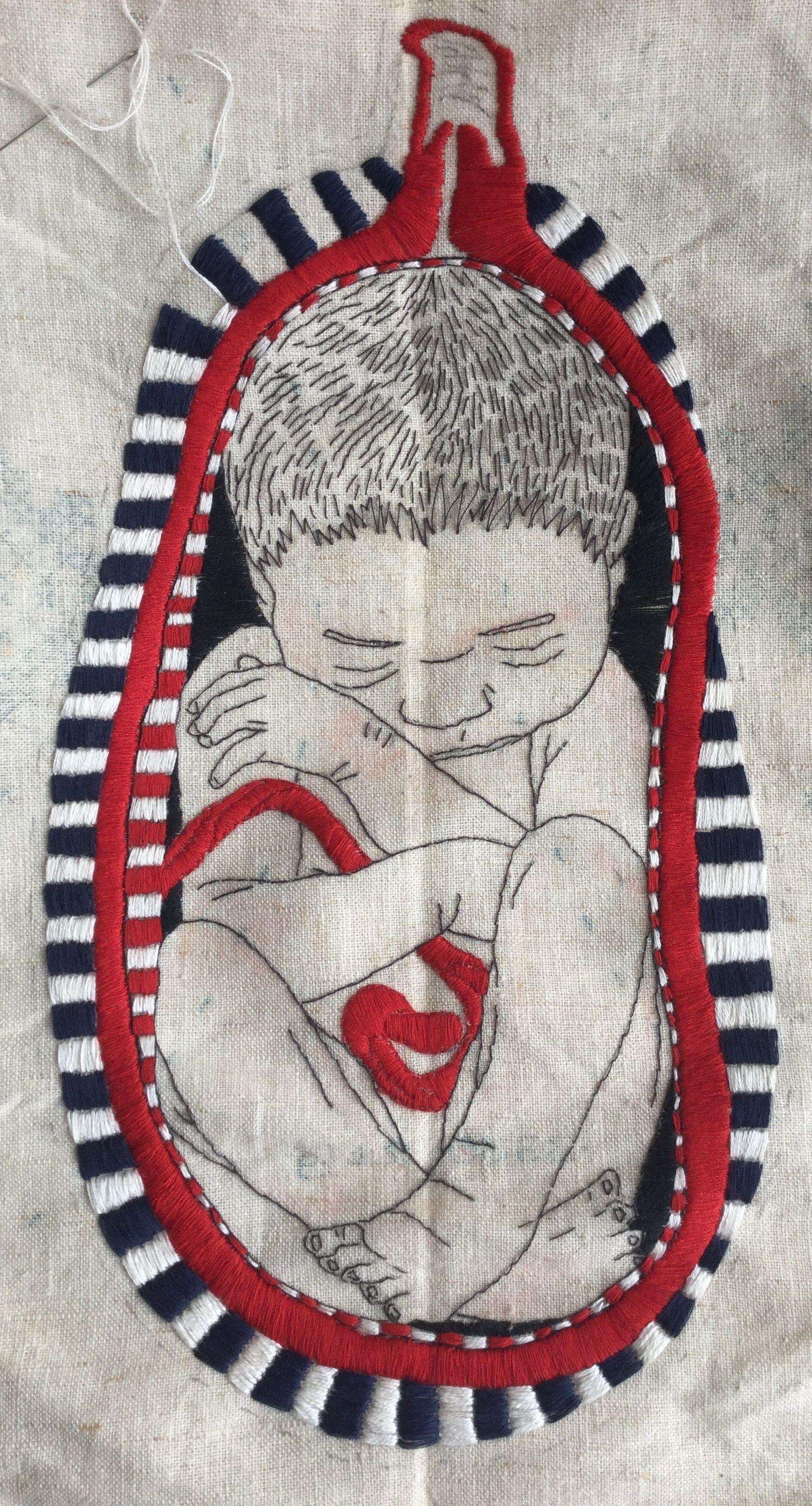 Work in progress karin van der linden medical art pinterest