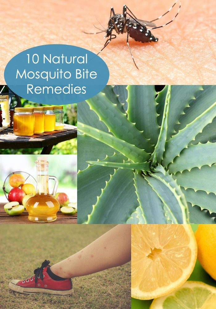 10 Natural Mosquito Bite Remedies Remedies for mosquito