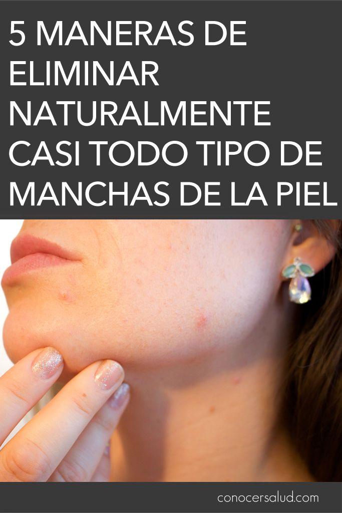 5 Maneras De Eliminar Naturalmente Casi Todo Tipo De Manchas De La Piel Salud Natural Cosmetics Natural Medicine Beauty Skin