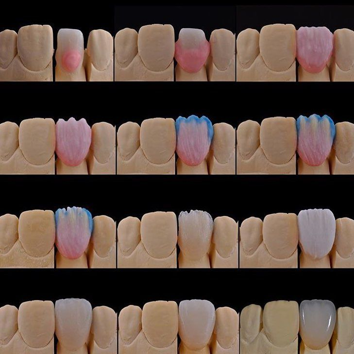 Зубных шпаргалки техников анатомии для по
