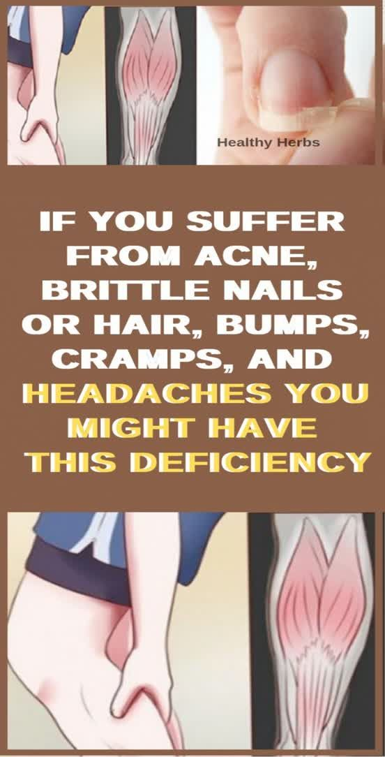 Brittle Nails Or Hair? Cramps Or Headaches? Acne Or Bumps? The Chances Are You…