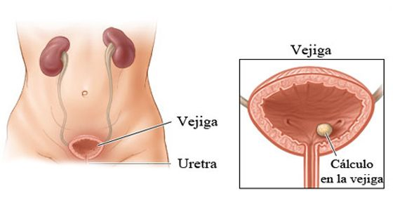 cálculos en la próstata y la vejiga sin maquillaje