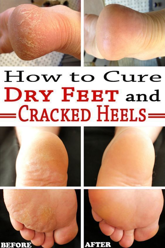 Check out these amazing natural remedies for dry feet and cracked heels. Get rid of these unsightly problems in a blink of an eye. #DrySkinRemedies #OilySkin #SkinWhiteningFace #SkinCareForCombinationSkin #crackedskinonheels