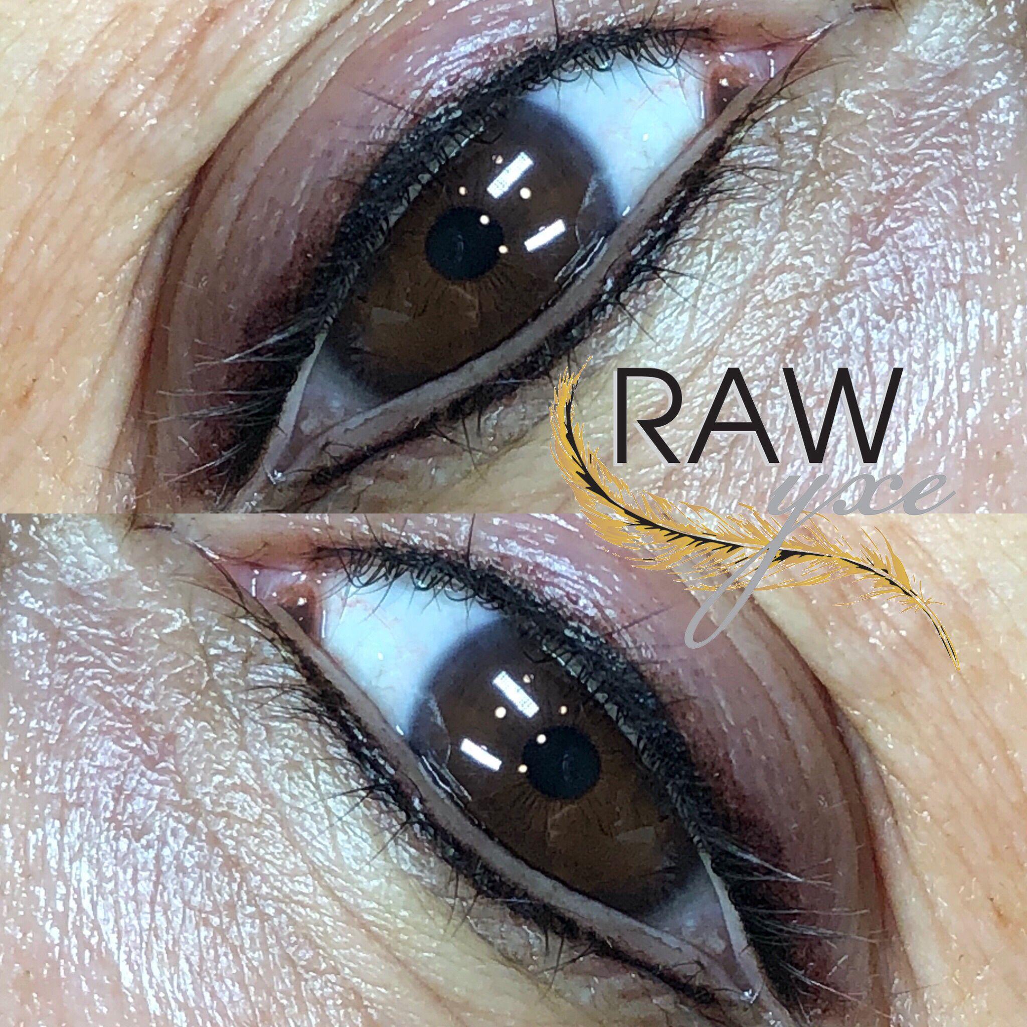 Cosmetically tattooed eyeliner wake up with eyes