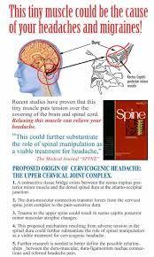 cervicogenic headache exercises - Google Search   Headache ...