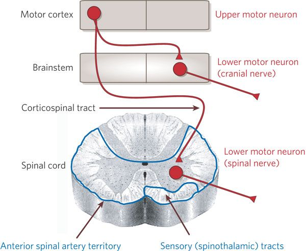 Hatte upper motor neuron corticospinal facial changes near