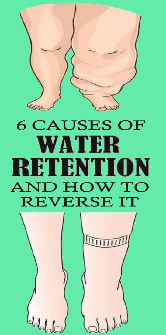 6 Simple Ways to Reduce Water Retention -   23 fitness legs health ideas