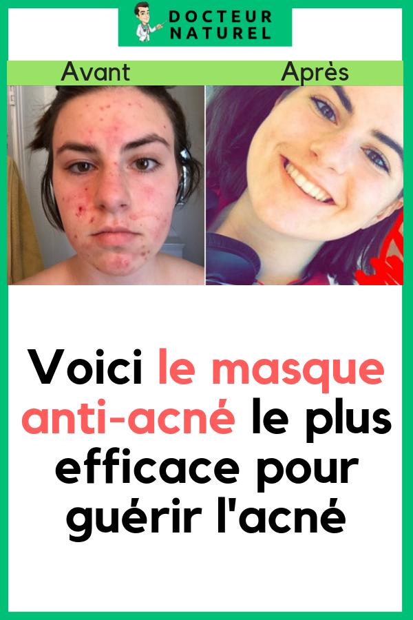 masque visage femme anti acne