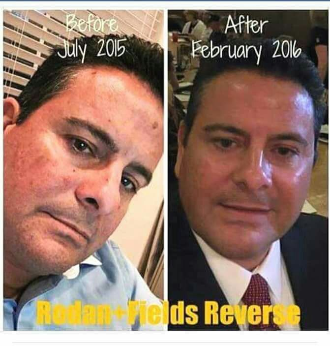 """Attn:  Boaters, Fishermen, Surfers, Golfers, ⛳️Skiers,Snowboarders, Stand-Up Paddle Boarders, Kayakers, Baseball/⚾️Soccer/⚽️Football Players,  Construction Workers, Landscapers, etc.... If you or your spouse have had hobbies or jobs outdoors for years, and want to start reversing brown spots & sun damage, I can help you or them! Ask me how you can get started. Super easy 4 step system  Check out Ron's results & hear what he said: """"After owning a boat for many years & outdoor sports for …"""