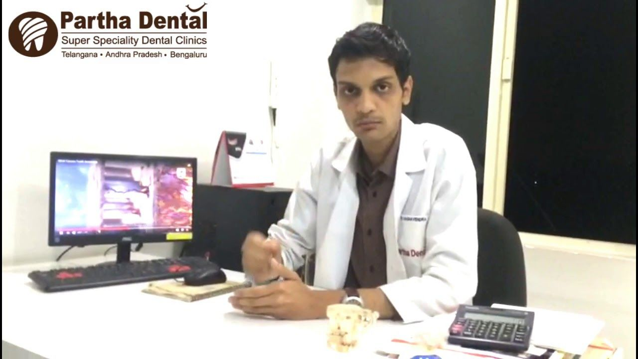 How Long Can You Keep A Temporary Filling After Root Canal Ii Partha De Root Canal Dental Filling