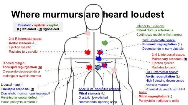 Image result for aortic murmur location | Pediatric ...