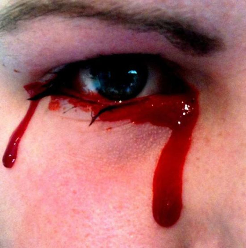 3 People Who Allegedly Cry Tears of Blood - http://www.weirdlife.com/3-people-who-allegedly-cry-tears-of-blood/