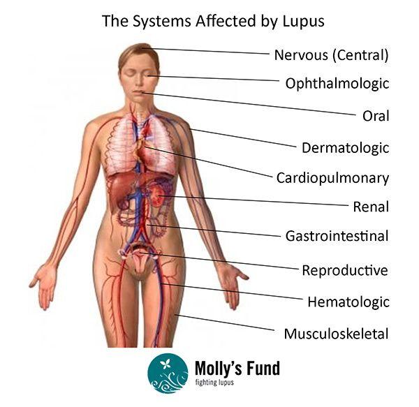 Systemic Lupus Erythematosus Plexus Products Autoimmune Disease