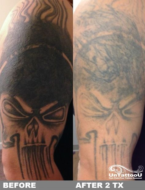 UnTattooU: Laser Tattoo Removal: Before & After 2 Treatments ...
