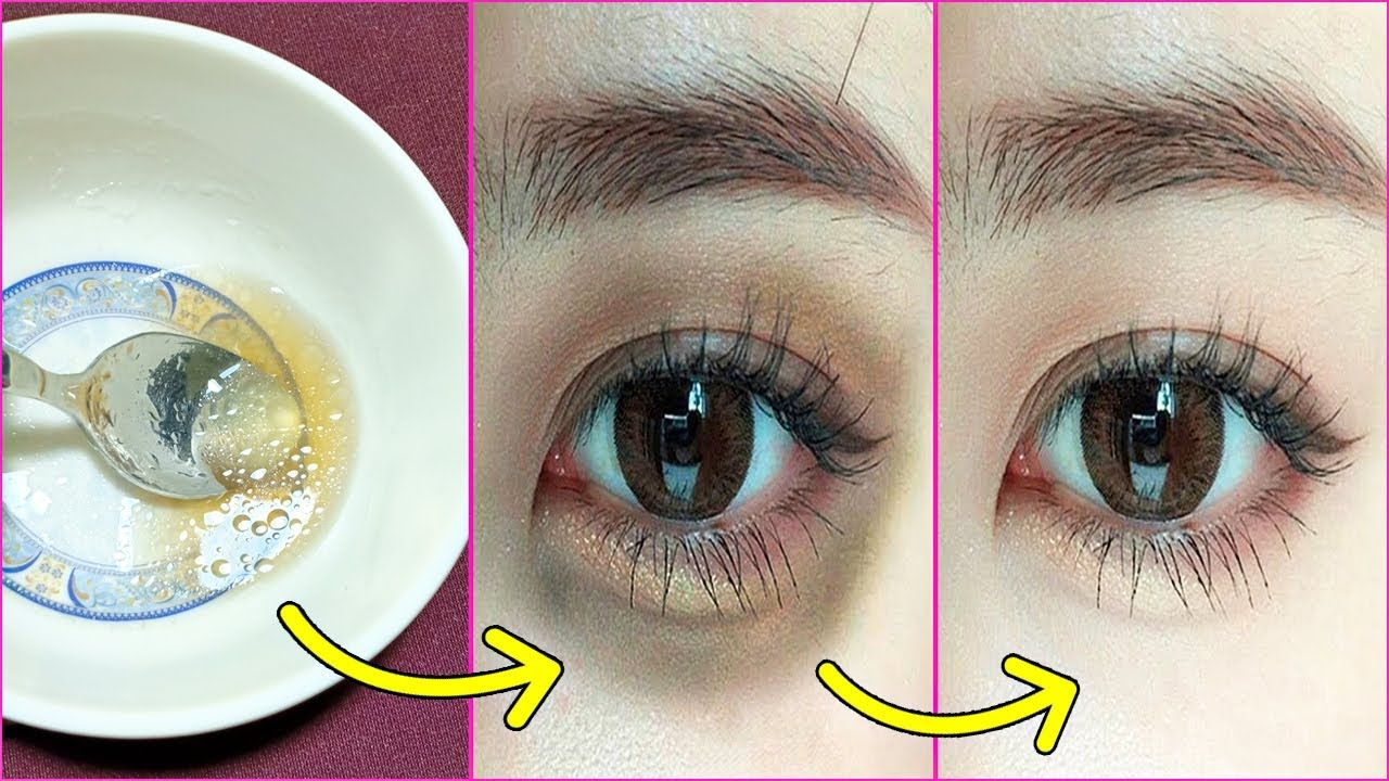 How to get rid of under eye dark circles permanently with