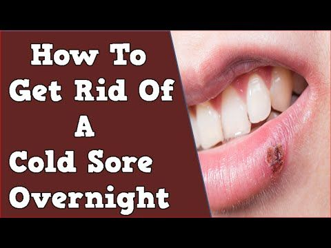 Httpget rid of cold sores permanentlygood info how to get httpget rid of cold sores permanently ccuart Images